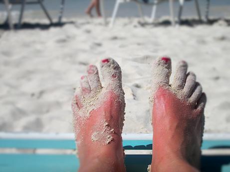 sunburn-macro-after